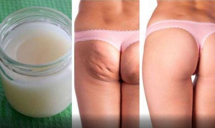 Make This Amazing Lotion at Home to Remove Stretch Marks and Cellulite in One Week ! !