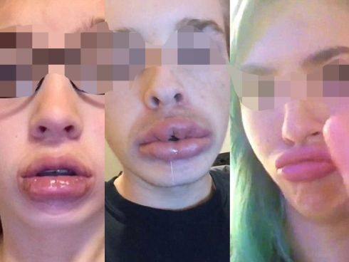 Cabaran besarkan bibir guna cawan dikecam warga Internet - http://malaysianreview.com/118983/cabaran-besarkan-bibir-guna-cawan-dikecam-warga-internet/