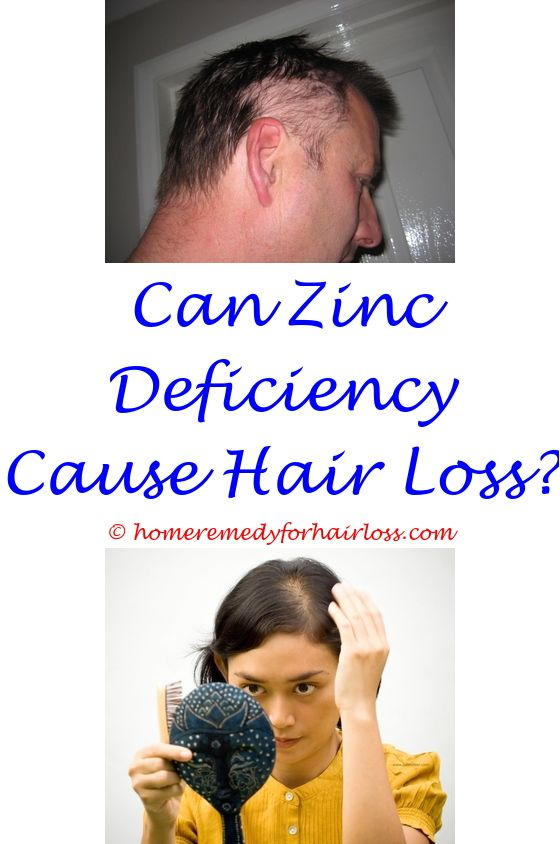 why didnt indians have hair loss - dog loss of hair spots.hair loss treatment price in malaysia hair loss anxiety disorder how to use coconut oil to stop hair loss 3439408946