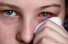 Fiebre del heno: 10 remedios para combatirla Jackie C