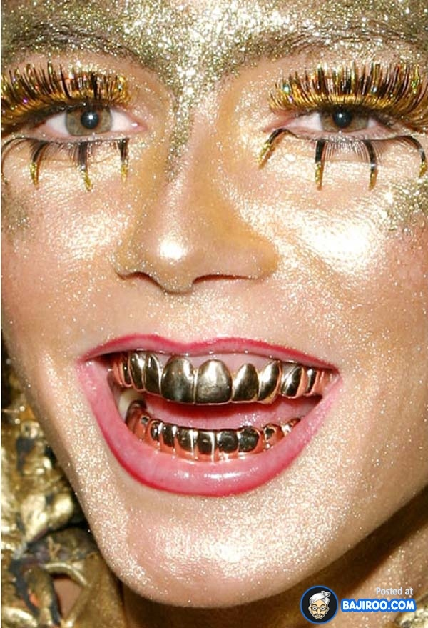 People With Golden Teeth (13 Photos) | m9. WEIRD INDEED ...