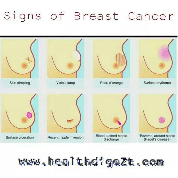 how to detect breast cancer symptoms