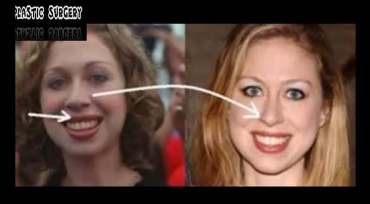 If you've been even vaguely tuned in to the overactive Hillary Clinton conspiracy mill over the years, you've likely heard about the questions of Chelsea Clinton's paternity. But for those who haven't, here's how this song goes: Bill Clinton is sterile, and Chelsea's real father is Clinton confidant and federal tax evader Webb Hubbell.