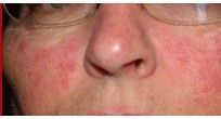 Visit our site http://www.rashonfaceblog.net for more information on Rash Around Mouth.The use of homely Rash On Face procedure ends up being essential if you have rashes on your face and other components of body as a result of different factors including absence of skin upkeep, too much sweating, dryness on skin or level of sensitivity of the skin.