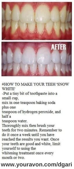 Whiten your teeth using toothpaste, baking soda, water, and hydrogen peroxide.