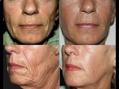 You can tighten sagging skin on face without painful cosmetic surgery. Here are the top skin tightening tips on how to tighten loose skin. Tighten sagging skin and remove wrinkles on your face with these natural skin tightening tips and homemade remedies. 1. Apply Astringent to Tighten Sagging Skin: Astringents are applied topically to skin…