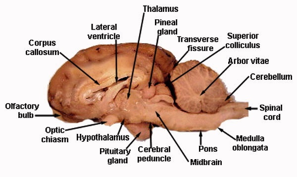 Sheep Brain: Cerebral Cortex, Cerebrum, Corpus Callosum, Olfactory ...