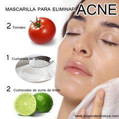 MASCARILLA PARA ELIMINAR ACNÉ 2 tomates, 1 cucharada de azúcar, 2 cucharadas de zumo de limón. Lavar, pelar, retirar las pepas del tomate, licuar el tomate y agregar el azúcar y el zumo del limón. Aplicar sobre el rostro y dejar que actúe durante 15 minutos. Una vez pasado los 15 minutos enjuagar con abundante agua fría. Aplicar 2 veces por semana.