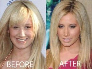 Ashley Tisdale's nose job gave her a smoldering new look.