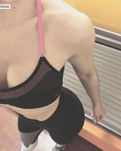 Implant teardrop breast