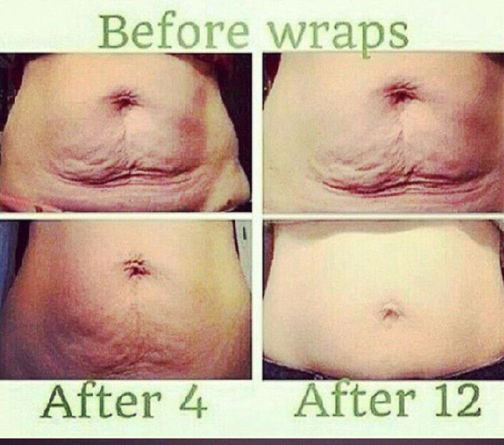 These results are real!  http://wrapmegorgeous.itworksau.com/default/