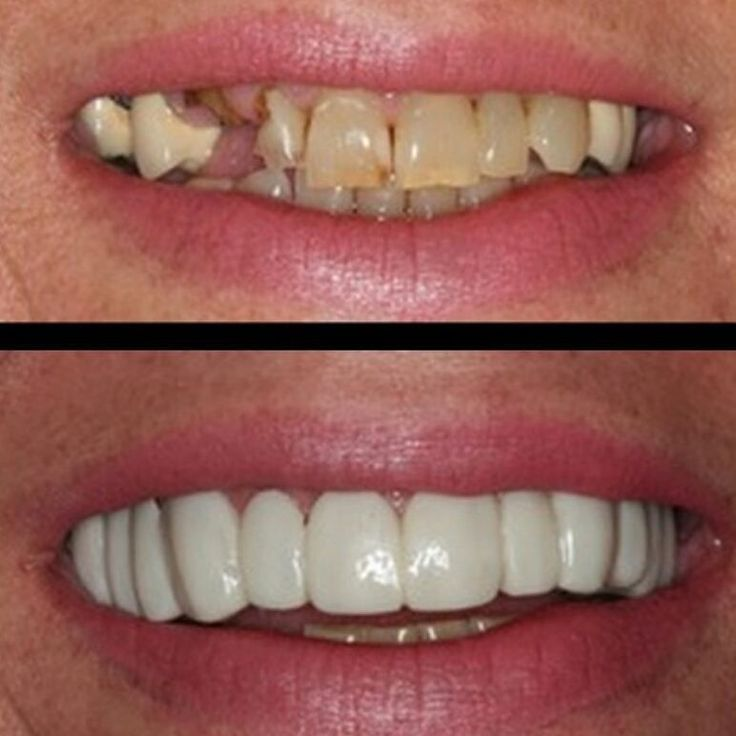 Dl: Teeth whitening treatment cost in india
