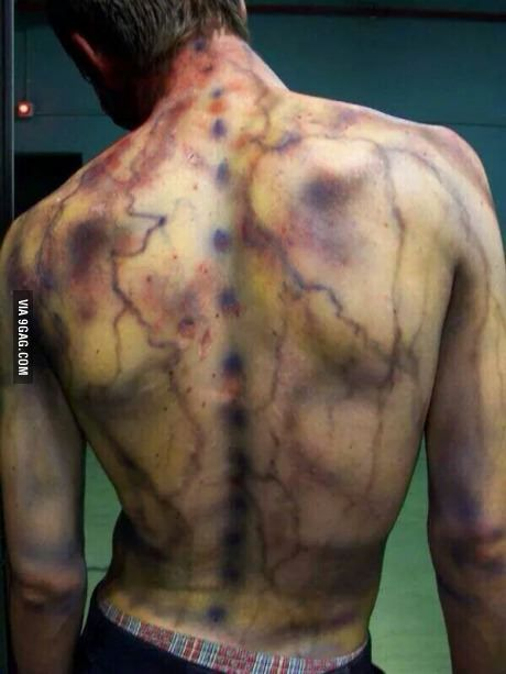 Bruising from lightning strike -Scary awesome!