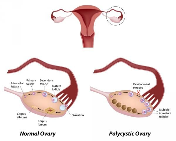 Polycystic ovary syndrome has many causes, including iodine deficiency.