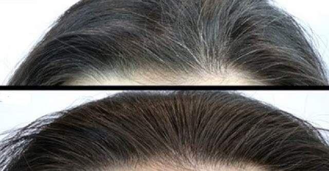 Remédio caseiro incrível que elimina os cabelos brancos – faça e prove   – Receita para retardar o envelhecimento dos cabelos