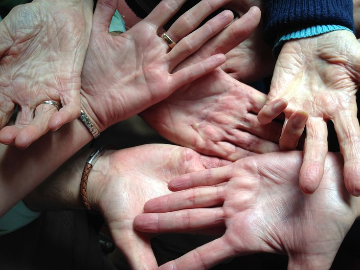 It's important to understand the difference betweenDupuytren disease (any Dupuytren like changes in the hand - with or without contracture) and Dupuytren contracture (a bent finger due to Dupuytren like changes).  An unsolved issue...