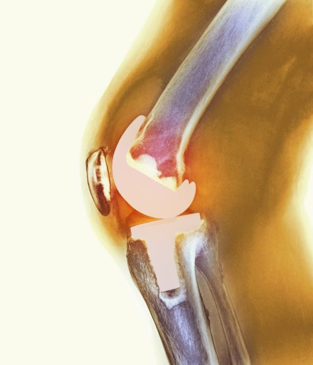 Why A Second Knee Replacement Is Harder Than The First: Revision knee replacement can be performed when an original knee replacement wears out.