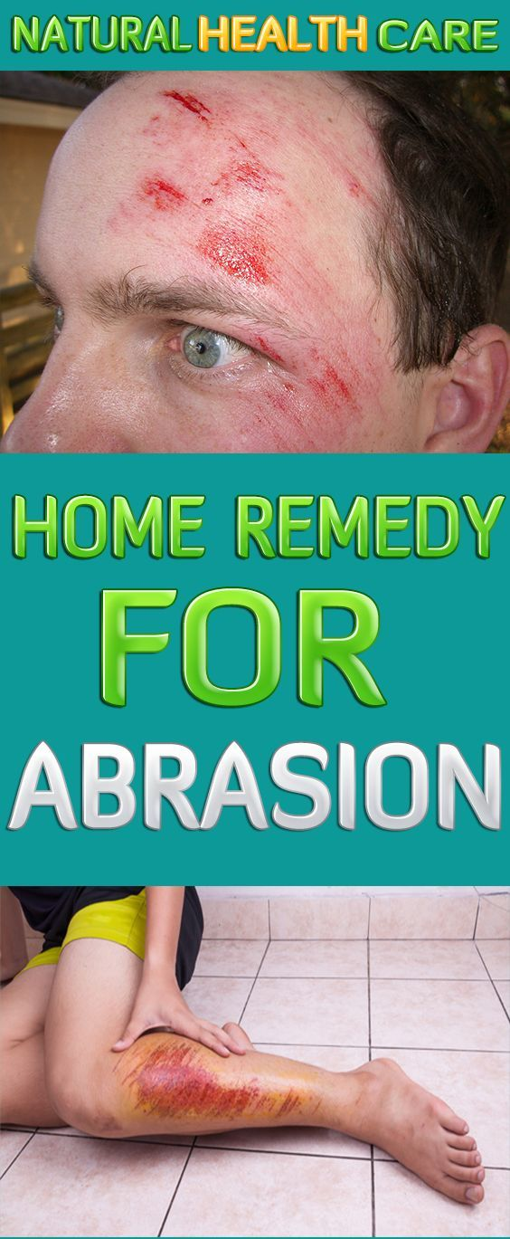 Abrasion Treatment with Natural Home Remedy | Skin Abrasion