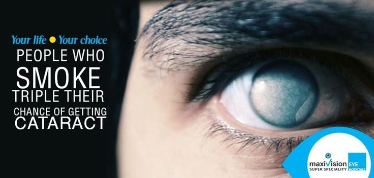 Cataract Eye. Blurry Vision.  Smoking triples the chances of Cataract! For more visit or website. Never Give up Giving up!