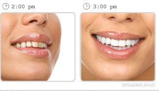 Brite Smile teeth whitening #Marrero #dentist