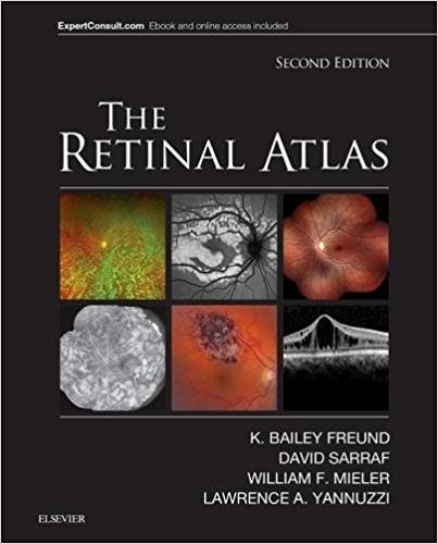 1016 best medical books images on pinterest the retinal atlas 2e 2nd edition fandeluxe Images