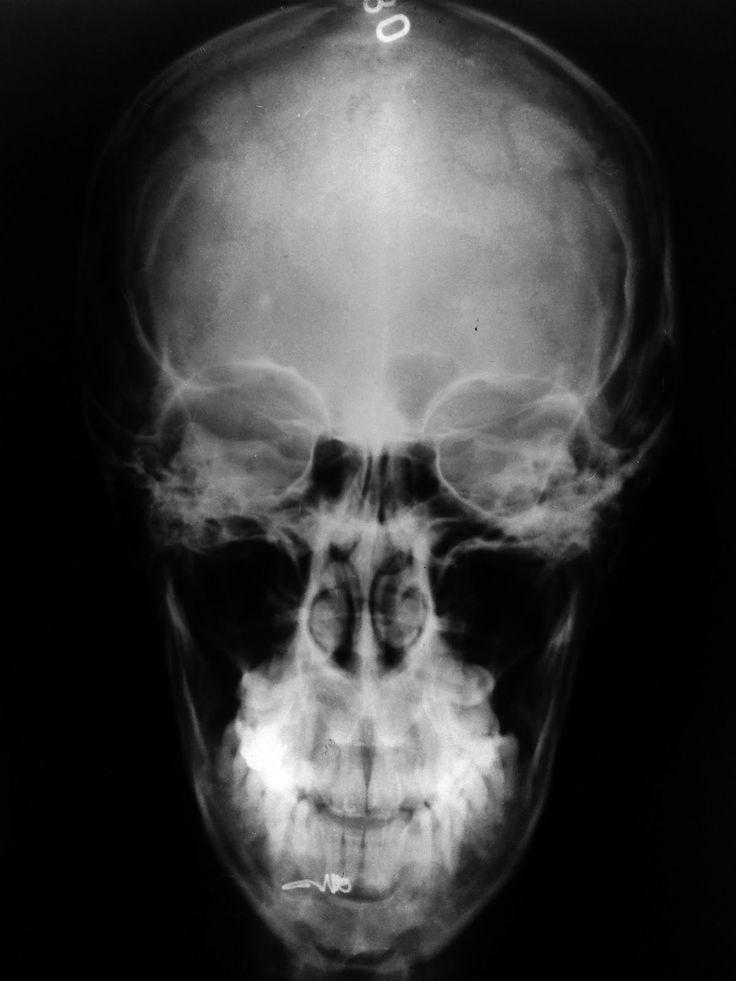 Radiografía del cráneo visto de frente, modificado el ángulo de visualización. Compare las diferencias con la imagen del cráneo frente y proponga hipótesis de cómo lo ubicaría al sujeto, fundamente desde la morfología.