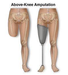 Above Knee Amputation