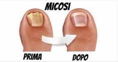 La micosi alle unghie, specie su quelle dei piedi è un problema che colpisce moltissime persone, ed è difficile da risolvere.