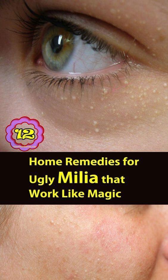 Milia also called milk spot on skin