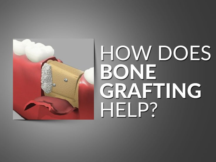 grafting and implants Bone grafting for dental implants is a surprisingly common procedure and is carried out prior to the placement of dental implants here's all you need to know.