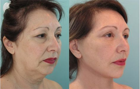 Cosmetic surgery before and after photos celebrity silhouette
