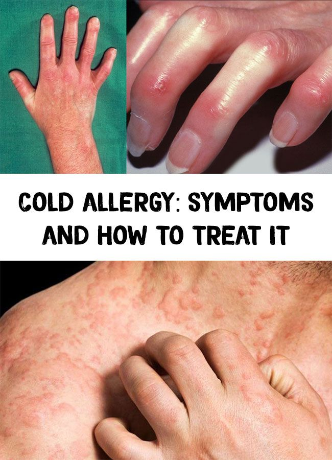 Cold Allergy Symptoms And How To Treat It Cold Or Allergies