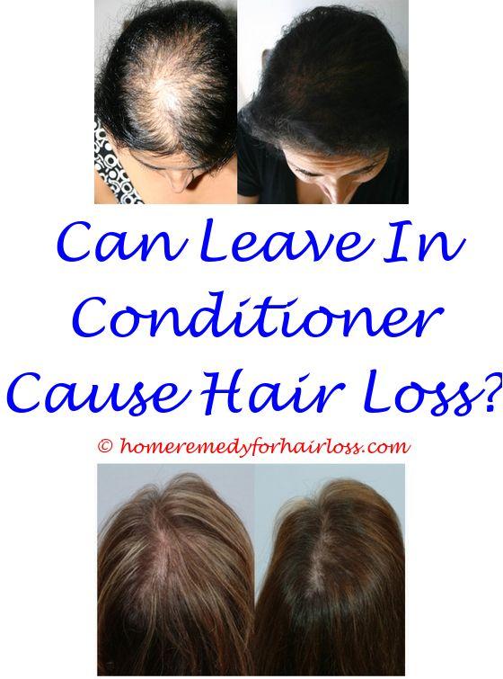 17 best Best Shampoo For Hair Loss Female images on Pinterest ...