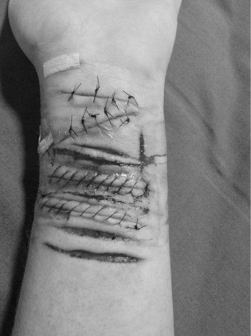 | Self Harm | Depression | Cuts | Scars | Razor blade | Suicide |