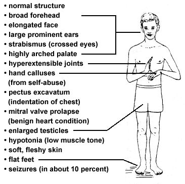 Wonderful Pathology Definition   Fragile X Syndrome