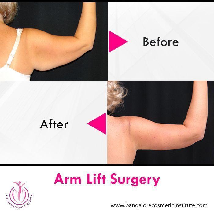 Ein Armlift, auch Brachioplasty genannt, ist ein kosmetischer chirurgischer Eing…