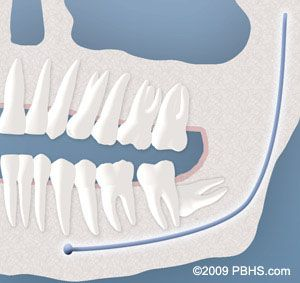 "IMPACTED WISDOM TEETH. ""Although most people develop and grow 32 permanent adult teeth, many times their jaws are too small to accommodate the four wisdom teeth.""  Nottingham Oral Surgery Center"