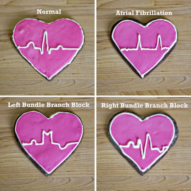 This is so unbelievably nerdy and cute. I will definitely be making these on Valentine's Day for all my other nerdy medical friends. OM NOM NOM