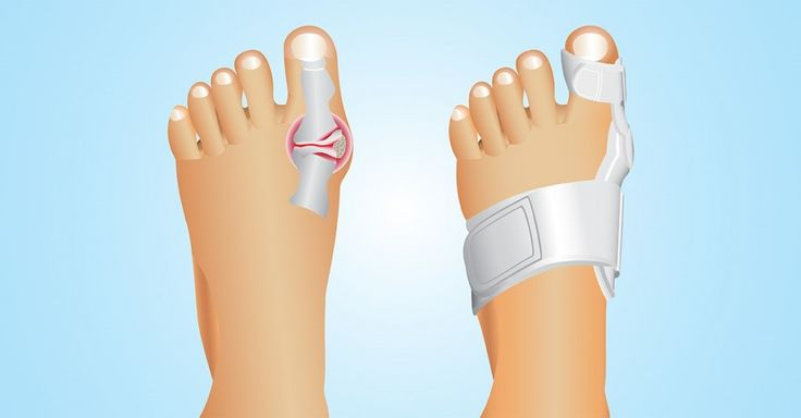 How To Get Rid Of Bunions Naturally?