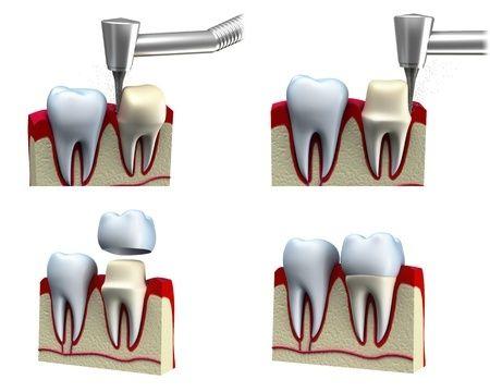 Cuando es necesaria una corona dental? En que casos?