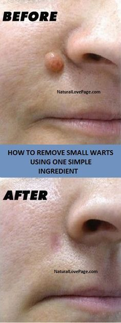 HOW TO REMOVE SMALL WARTS USING ONE SIMPLE INGREDIENT http://www.wartalooza.com/treatments/salicylic-acid-treatment-for-warts