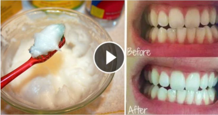 Experts Found Out That This Oil Is Better Than Your Toothpaste! Unbelievable!