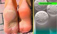 Aspirinas para pies duros y callosos descubre el secreto de muchos para suavizar sus pies con esta receta | Curiosidades, humor, rarezas, raras, noticias raras…cosasmasraras.com