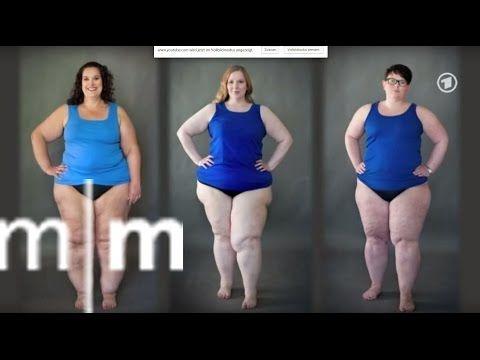 Lipödem - Entzündung - Ernährung - Darm - YouTube