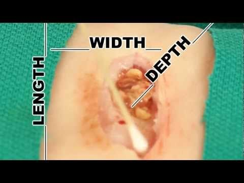 Wound Measurement- Understand Wound Care Great video for instructing students!