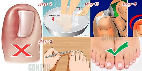Many people have to deal with ingrown nail which is not only an unpleasent condition, but it also can be very painful. It usually occurs as a result of clipping the toe nail wrong. The right way to clip the nails is flat, never rounded at the edges. Ingrown toenail is a condition in which …