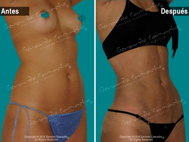 #Lipovaser  con #marcacionabdominal #definicionabdominales con #Aumentomamario O #mamoplastia  #abdominaletching  #lipolaser  #lipolaserhd  #plasticsurgeon  #plasticsurgery  #liposuction  #lipolysis