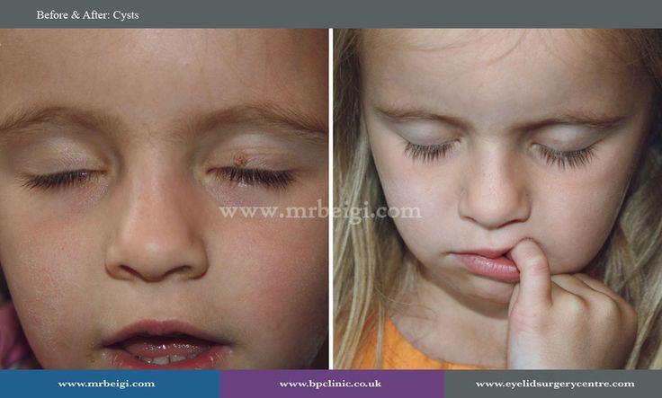 Before & After: Eye Cysts #beforeandafter #cosmeticsurgery #laser #surgical #cosmeticsurgery #MrBeigi www.mrbeigi.com