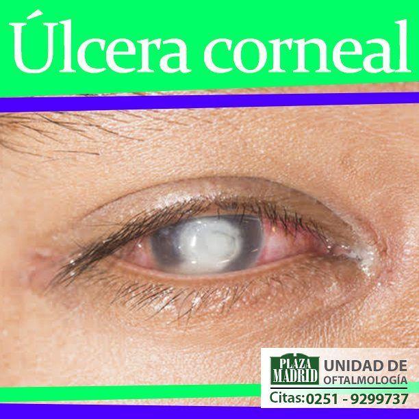 Infecciones Hongos - La úlcera de la córnea es una lesión abierta en la córnea (la capa delantera y transparente del ojo). La córnea cubre el iris (la parte coloreada del ojo) y la pupila de la misma forma como un cristal cubre la cara de un reloj. Una úlcera de la córnea suele ser el resultado de una infección ocular por hongo bacterias virus parásitos aunque puede ser causada por una condición de ojo seco severa u otros problemas visuales. Dr. Sixto Benitez Oftalmólogo - Segmento ant...