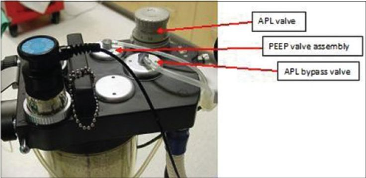 Figure 3: Top view of manifold shows positive end-expiratory pressure valve